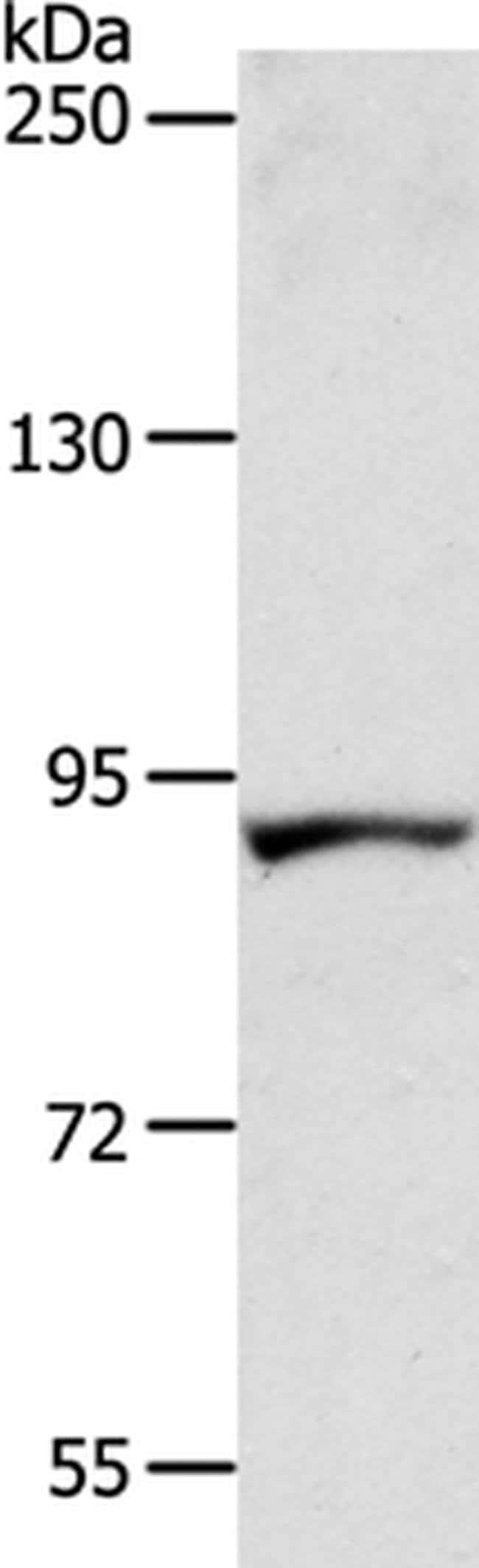 ACAD11 Rabbit anti-Human, Polyclonal, Invitrogen 100 µL; Unconjugated