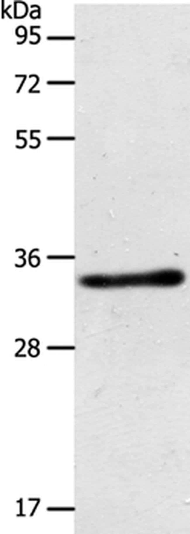 ACY3 Rabbit anti-Human, Mouse, Polyclonal, Invitrogen 100 µL; Unconjugated