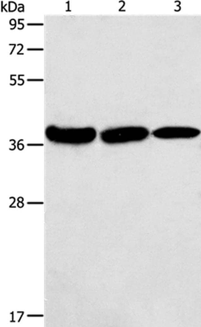 AGA Rabbit anti-Human, Mouse, Polyclonal, Invitrogen 100 µL; Unconjugated