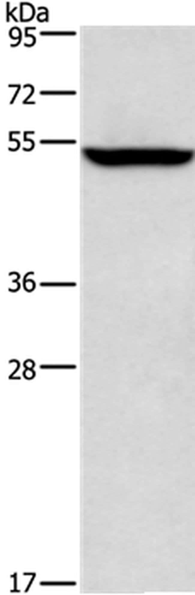 ALG12 Rabbit anti-Human, Polyclonal, Invitrogen 100 µL; Unconjugated