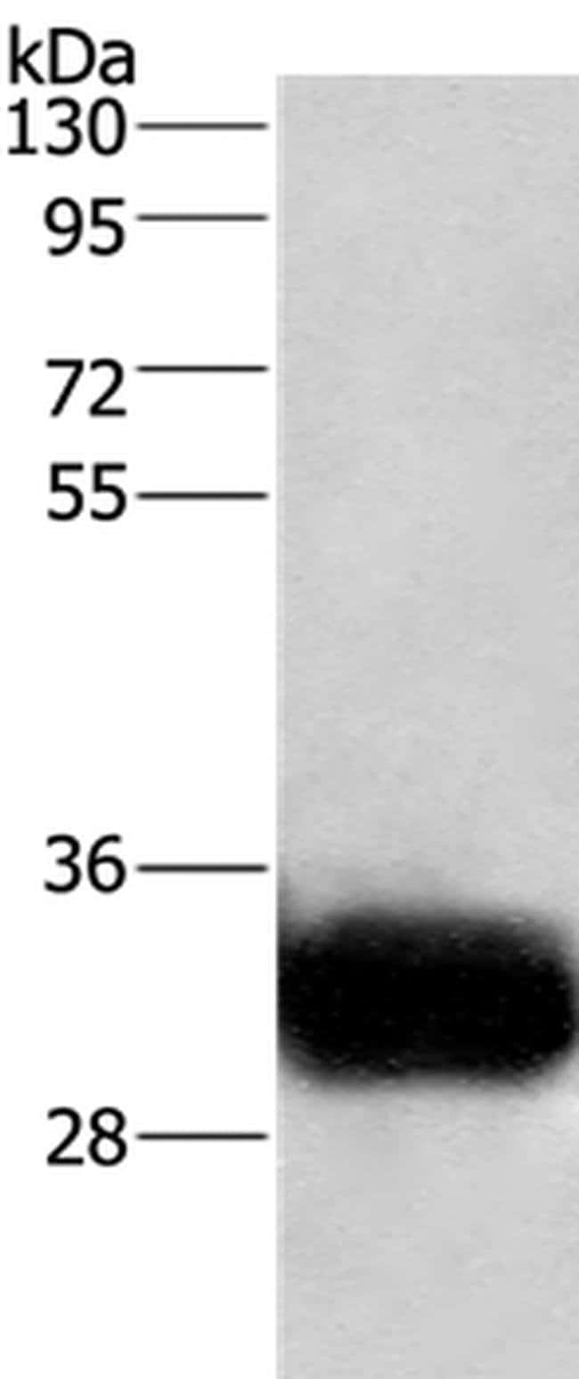 GPM6A Rabbit anti-Human, Polyclonal, Invitrogen 100 µL; Unconjugated
