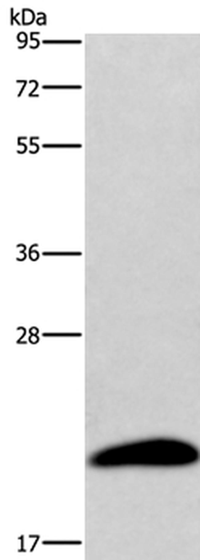 AURKAIP1 Rabbit anti-Human, Polyclonal, Invitrogen 100 µL; Unconjugated