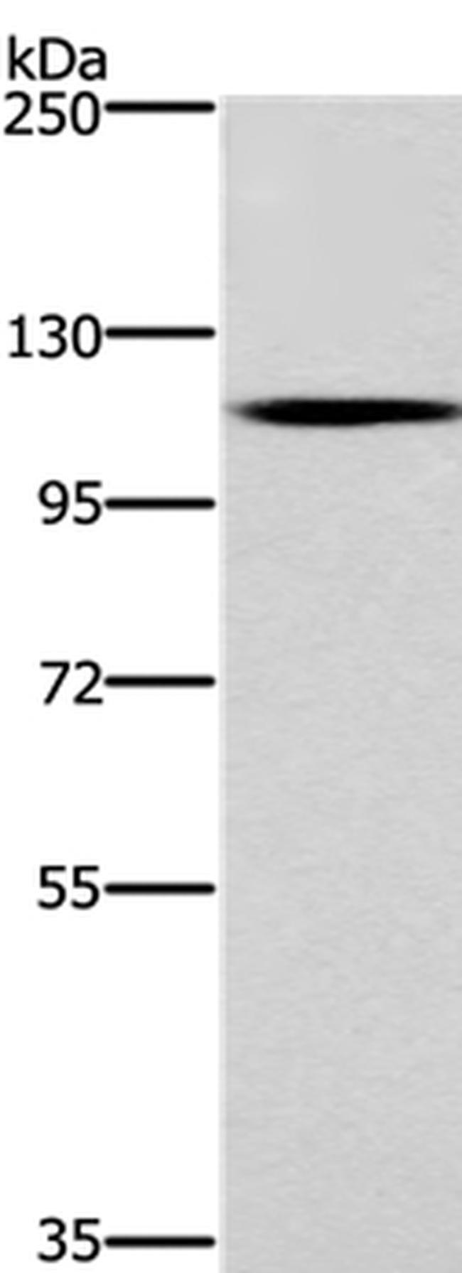 CARD14 Rabbit anti-Human, Polyclonal, Invitrogen 100 µL; Unconjugated