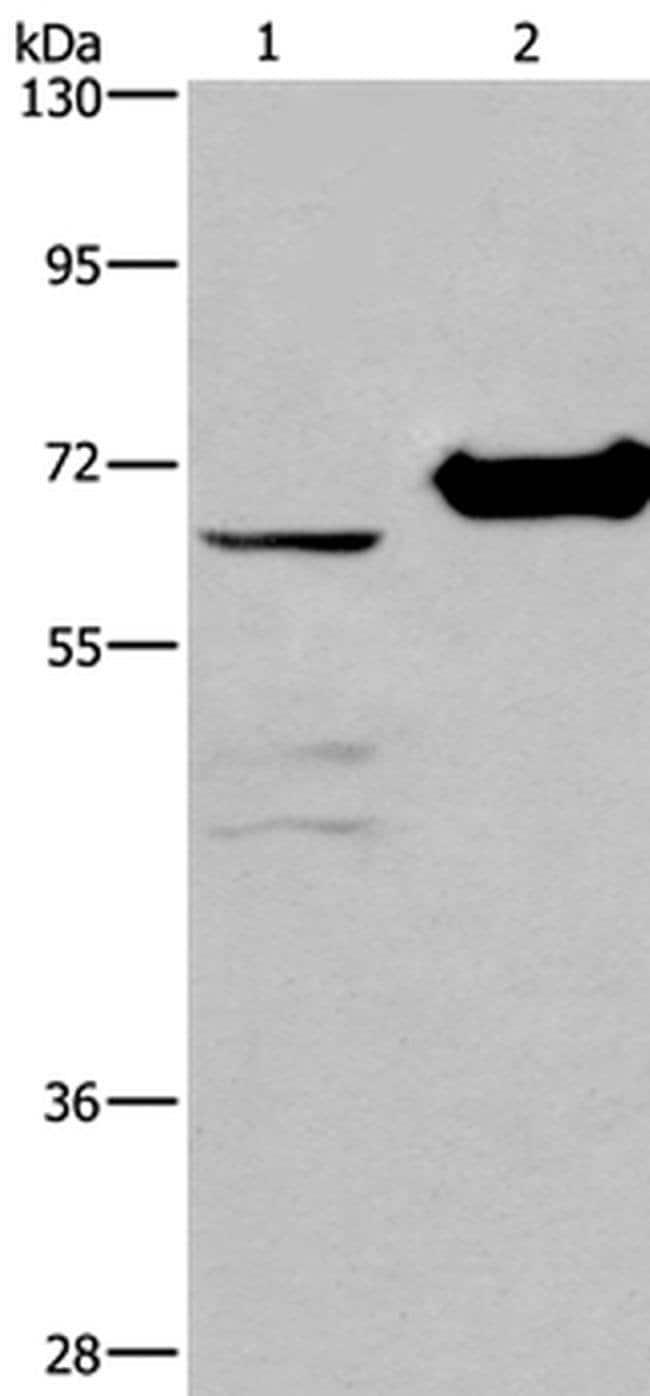 CHDH Rabbit anti-Human, Mouse, Polyclonal, Invitrogen 100 µL; Unconjugated
