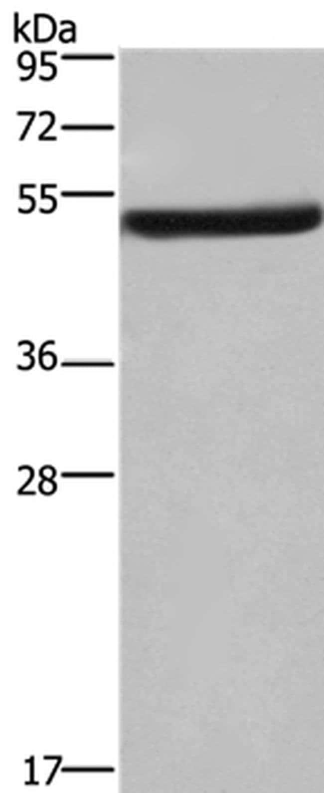 eIF3f Rabbit anti-Human, Mouse, Polyclonal, Invitrogen 100 µL; Unconjugated