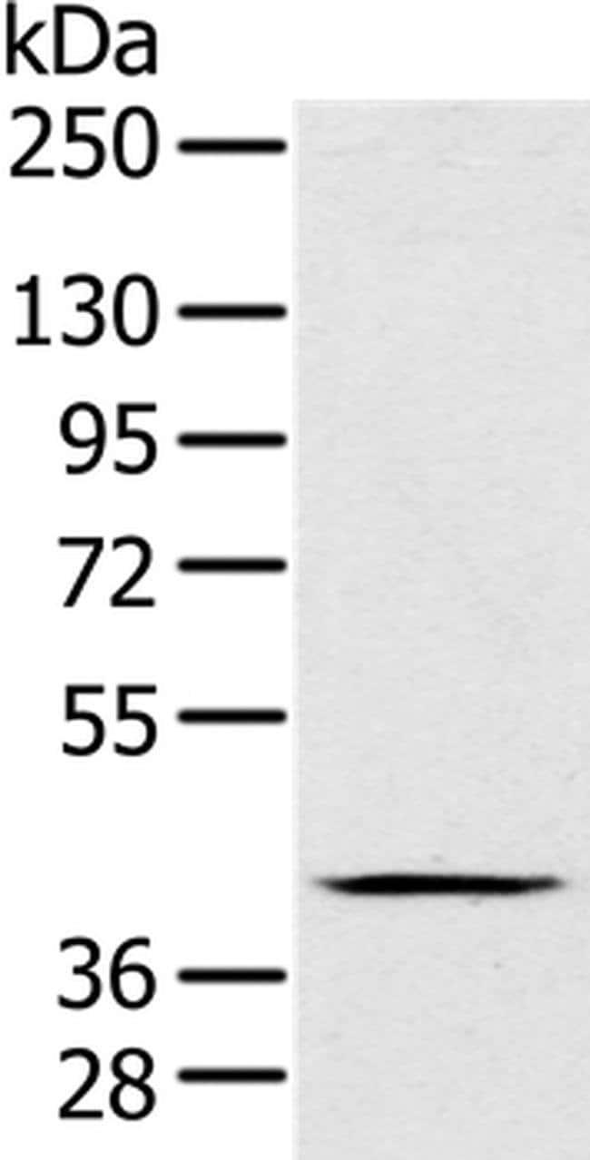 FAIM3 Rabbit anti-Human, Polyclonal, Invitrogen 100 µL; Unconjugated