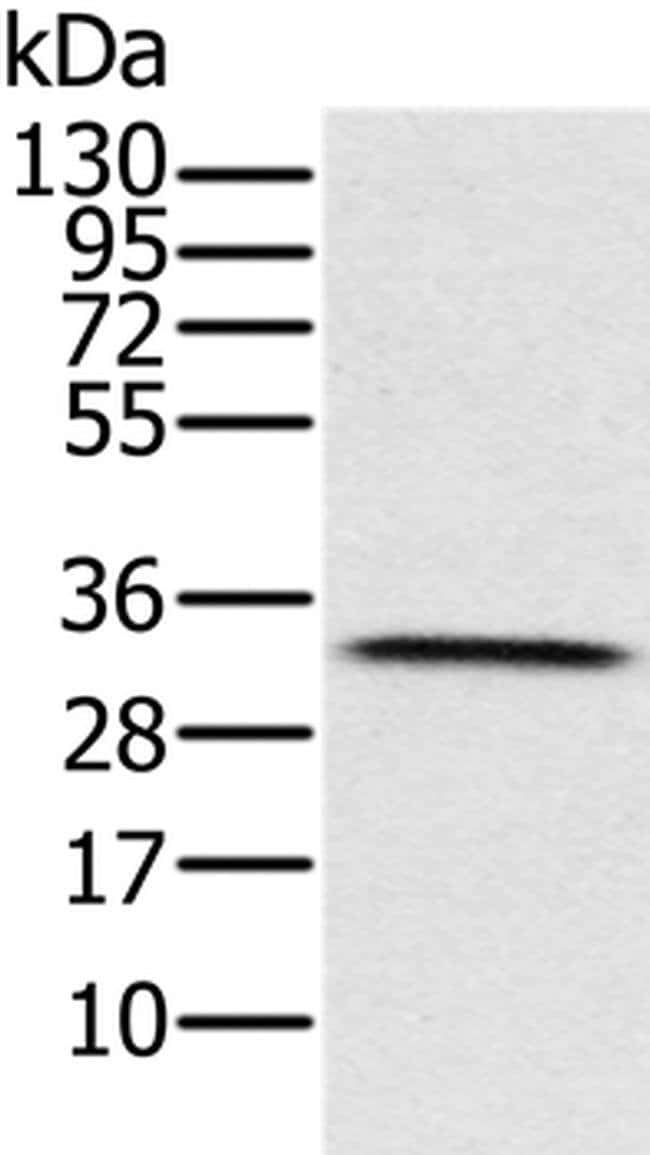 HSD17B8 Rabbit anti-Human, Polyclonal, Invitrogen 100 µL; Unconjugated