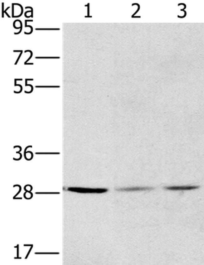 HSD17B12 Rabbit anti-Human, Polyclonal, Invitrogen 100 µL; Unconjugated