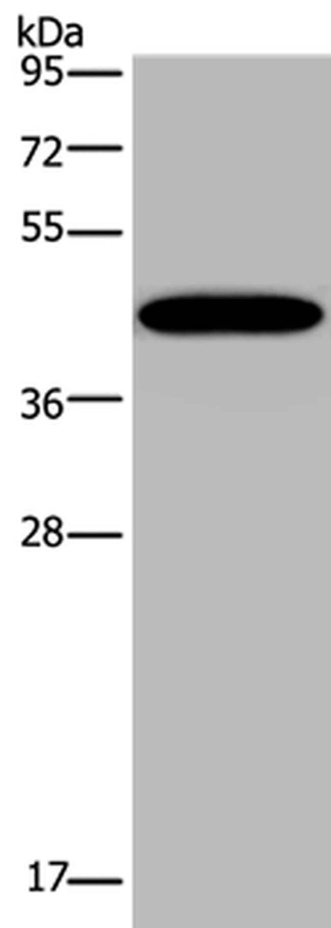 KCNK13 Rabbit anti-Human, Mouse, Polyclonal, Invitrogen 100 µL; Unconjugated