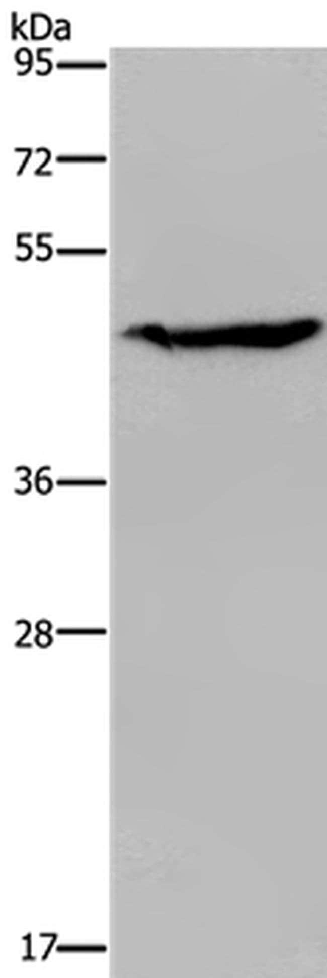 ACP6 Rabbit anti-Human, Polyclonal, Invitrogen 100 µL; Unconjugated
