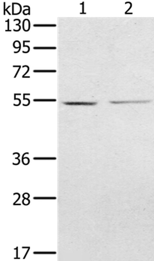 NMT2 Rabbit anti-Human, Polyclonal, Invitrogen 100 µL; Unconjugated