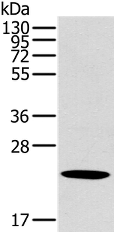 OTUB2 Rabbit anti-Human, Polyclonal, Invitrogen 100 µL; Unconjugated