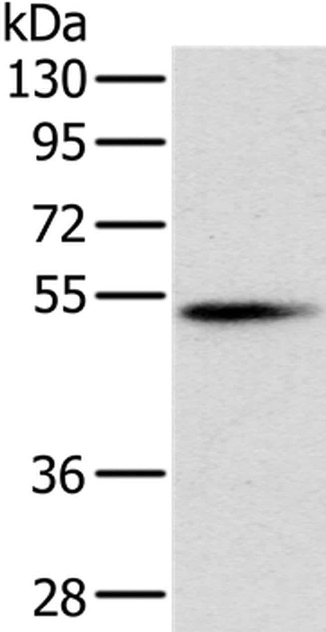 PNLIP Rabbit anti-Human, Mouse, Polyclonal, Invitrogen 100 µL; Unconjugated
