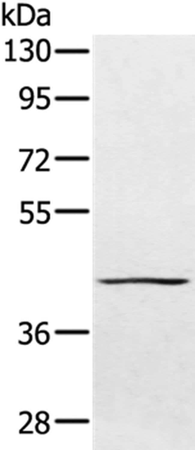 PTPN7 Rabbit anti-Human, Polyclonal, Invitrogen 100 µL; Unconjugated
