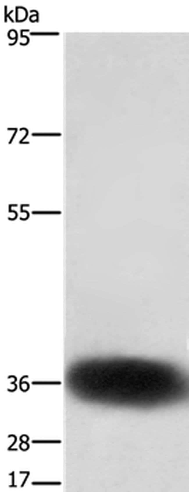 SLC7A5 Rabbit anti-Human, Mouse, Polyclonal, Invitrogen 100 µL; Unconjugated