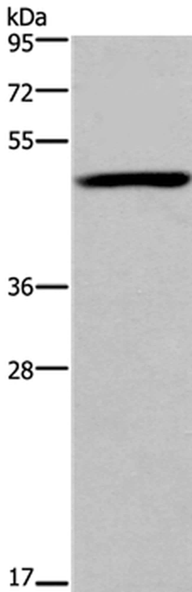 FOXD1 Rabbit anti-Human, Mouse, Polyclonal, Invitrogen 100 µL; Unconjugated
