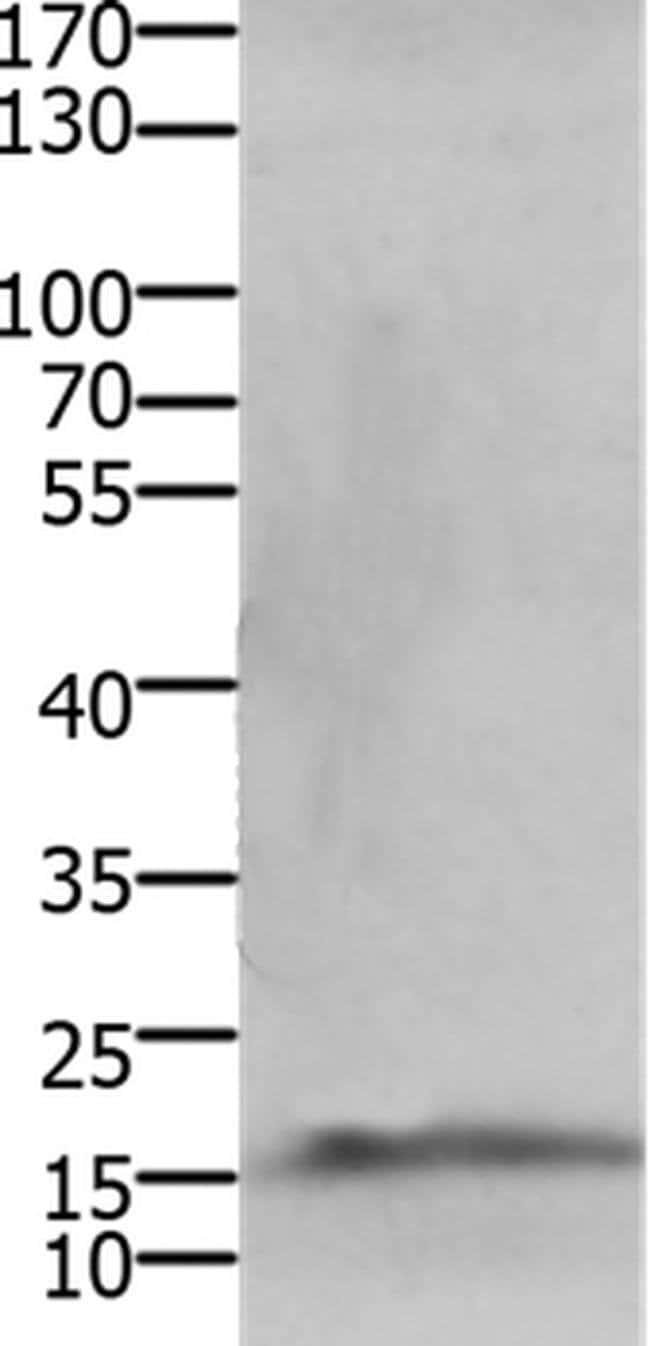 CMTM5 Rabbit anti-Human, Mouse, Polyclonal, Invitrogen 100 µL; Unconjugated
