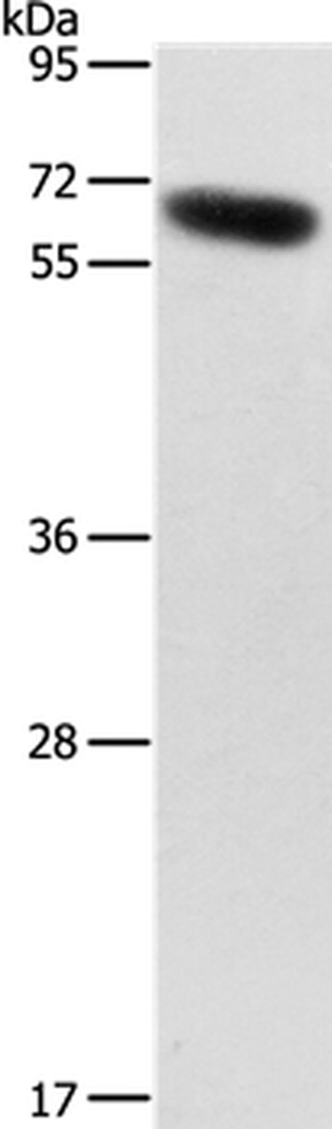 SLC2A12 Rabbit anti-Human, Polyclonal, Invitrogen 100 µL; Unconjugated