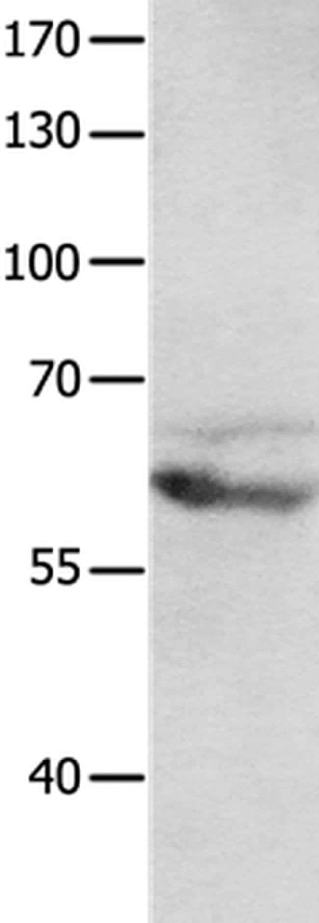 mGluR8 Rabbit anti-Human, Mouse, Rat, Polyclonal, Invitrogen 100 µL;