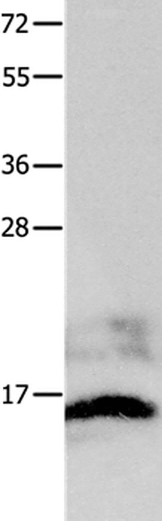 KISS1 Rabbit anti-Human, Mouse, Polyclonal, Invitrogen 100 µL; Unconjugated