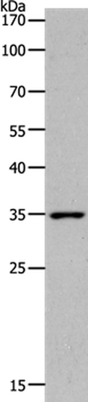 MC2R Rabbit anti-Human, Polyclonal, Invitrogen 100 µL; Unconjugated