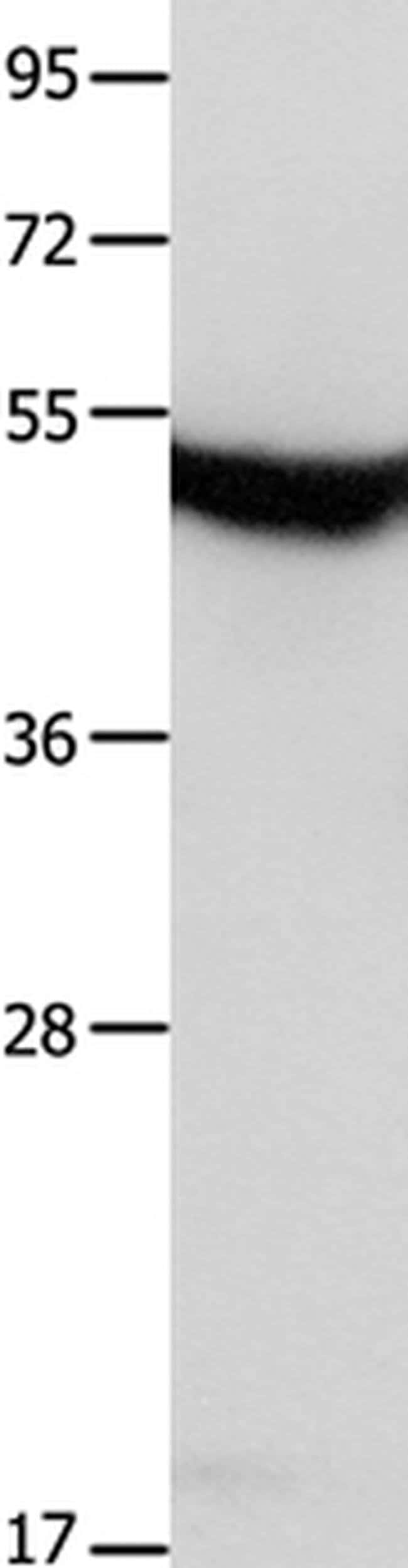 MTNR1A Rabbit anti-Human, Mouse, Polyclonal, Invitrogen 100 µL; Unconjugated