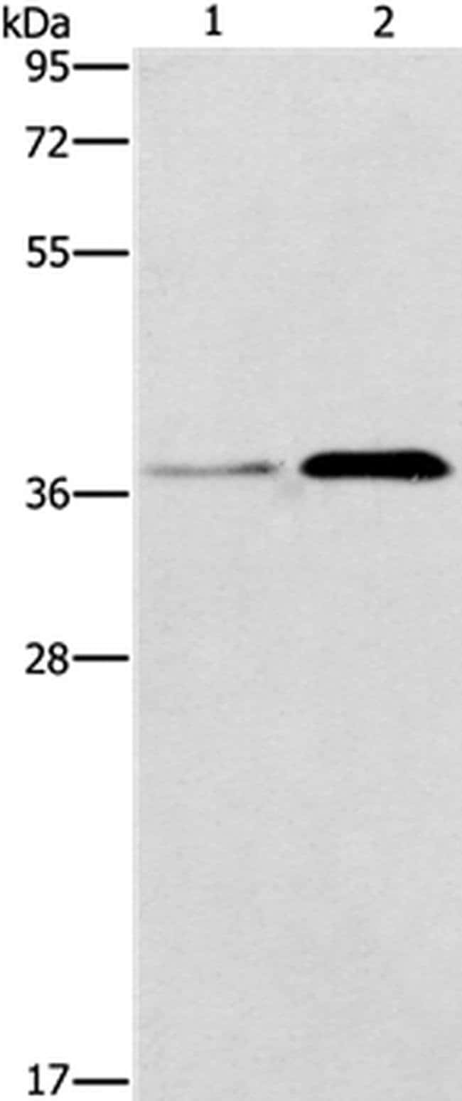 PAFAH2 Rabbit anti-Human, Polyclonal, Invitrogen 100 µL; Unconjugated