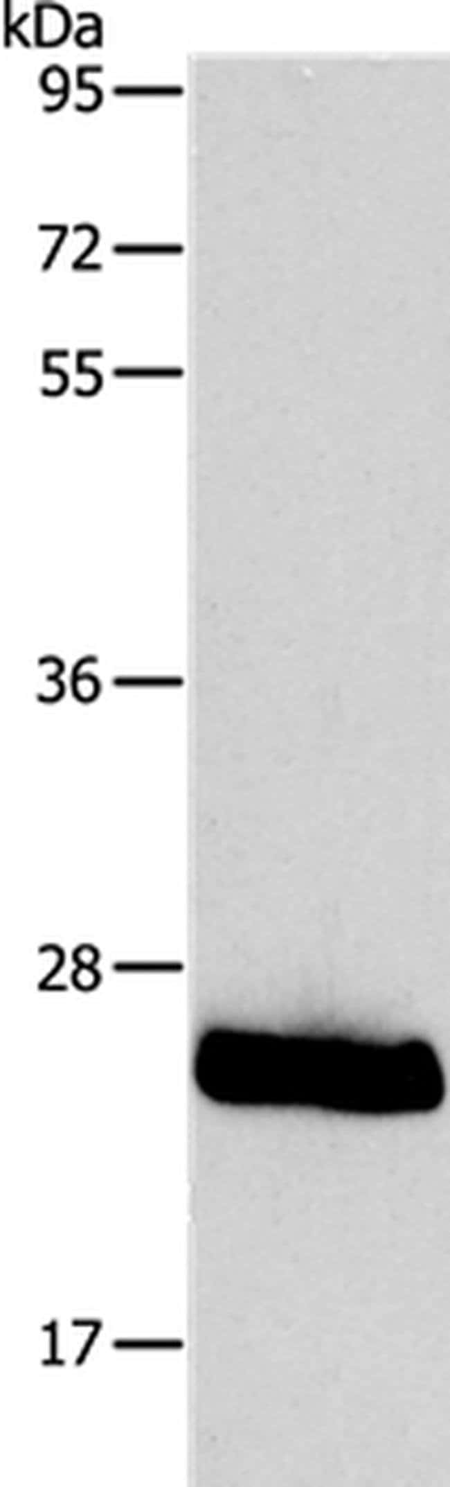 PPAP2C Rabbit anti-Human, Mouse, Polyclonal, Invitrogen 100 µL; Unconjugated