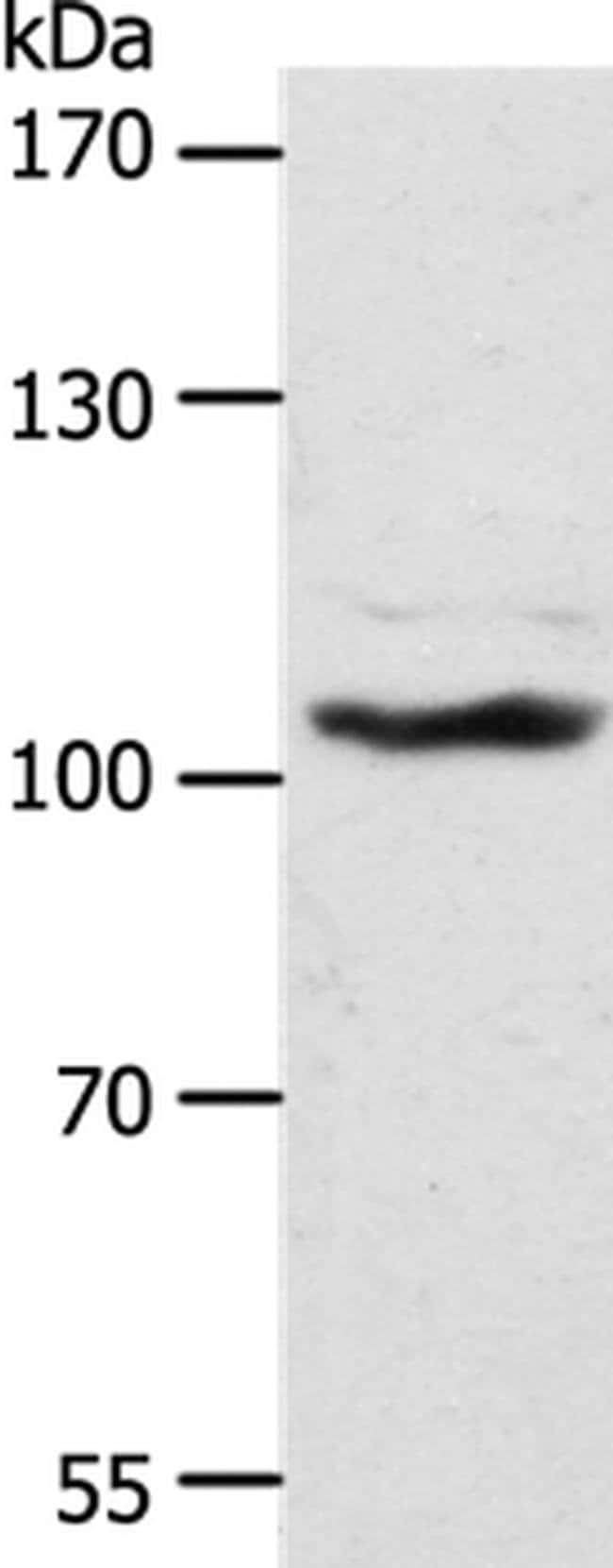 ADAMTS17 Rabbit anti-Human, Mouse, Polyclonal, Invitrogen 100 µL;