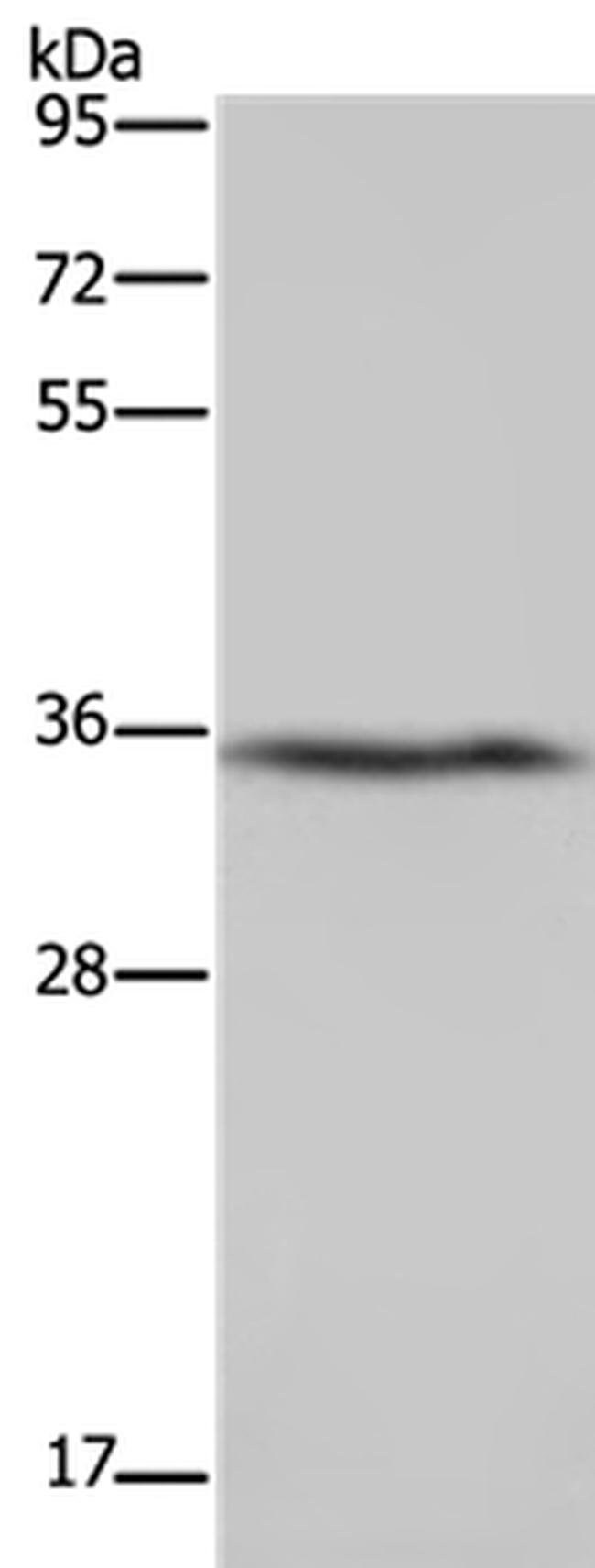 DDAH1 Rabbit anti-Human, Mouse, Rat, Polyclonal, Invitrogen 100 µL;
