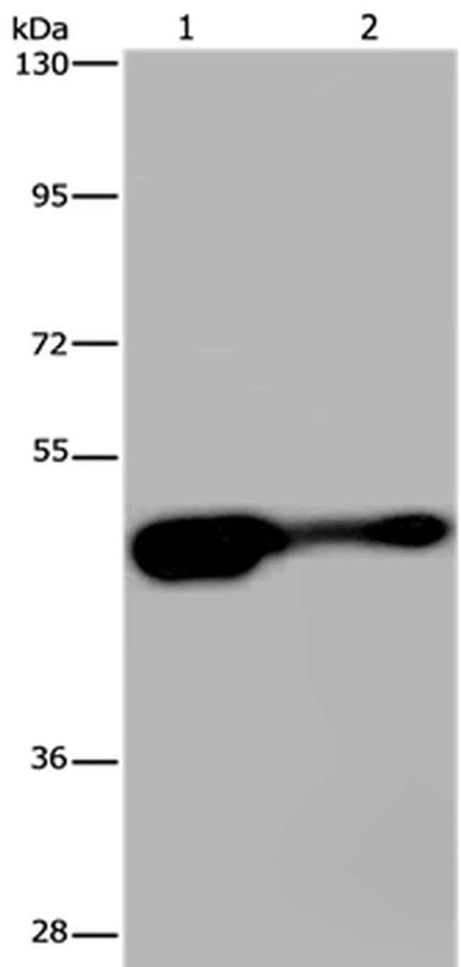AHRR Rabbit anti-Human, Mouse, Polyclonal, Invitrogen 100 µL; Unconjugated