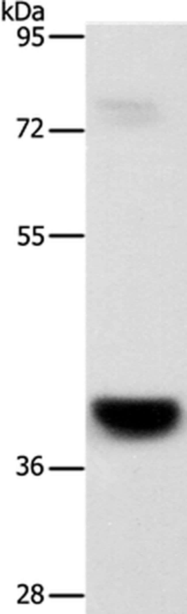 GPR182 Rabbit anti-Human, Mouse, Polyclonal, Invitrogen 100 µL; Unconjugated