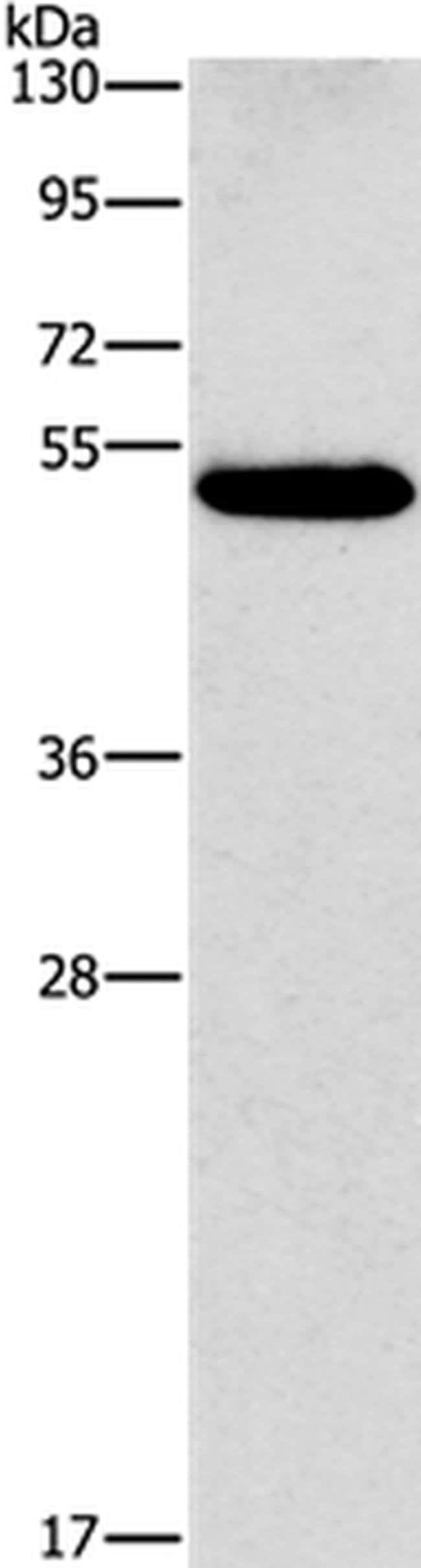 CALCRL Rabbit anti-Human, Polyclonal, Invitrogen 100 µL; Unconjugated