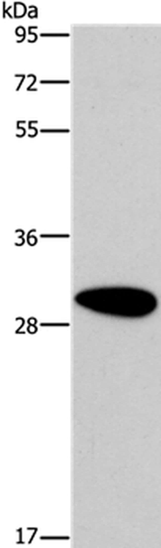 DDAH2 Rabbit anti-Human, Mouse, Rat, Polyclonal, Invitrogen 100 µL;