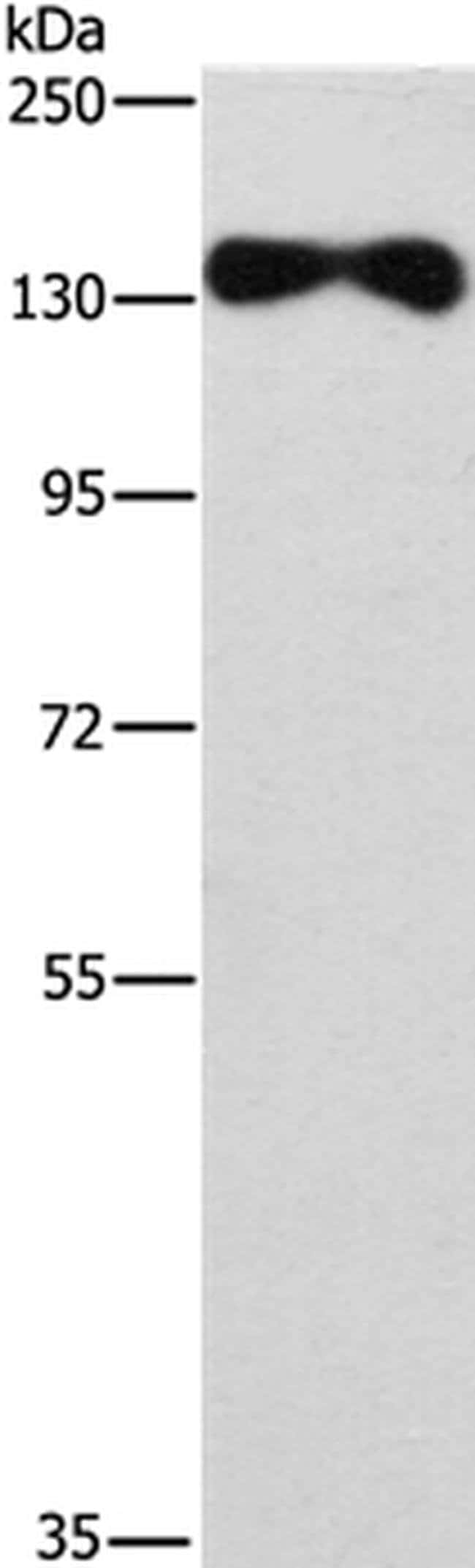 EVC2 Rabbit anti-Human, Polyclonal, Invitrogen 100 µL; Unconjugated