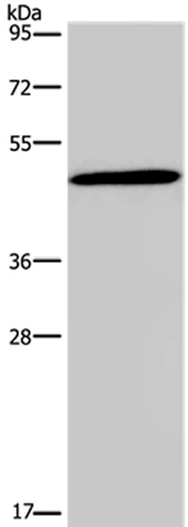 Glucagon Receptor Rabbit anti-Human, Mouse, Rat, Polyclonal, Invitrogen