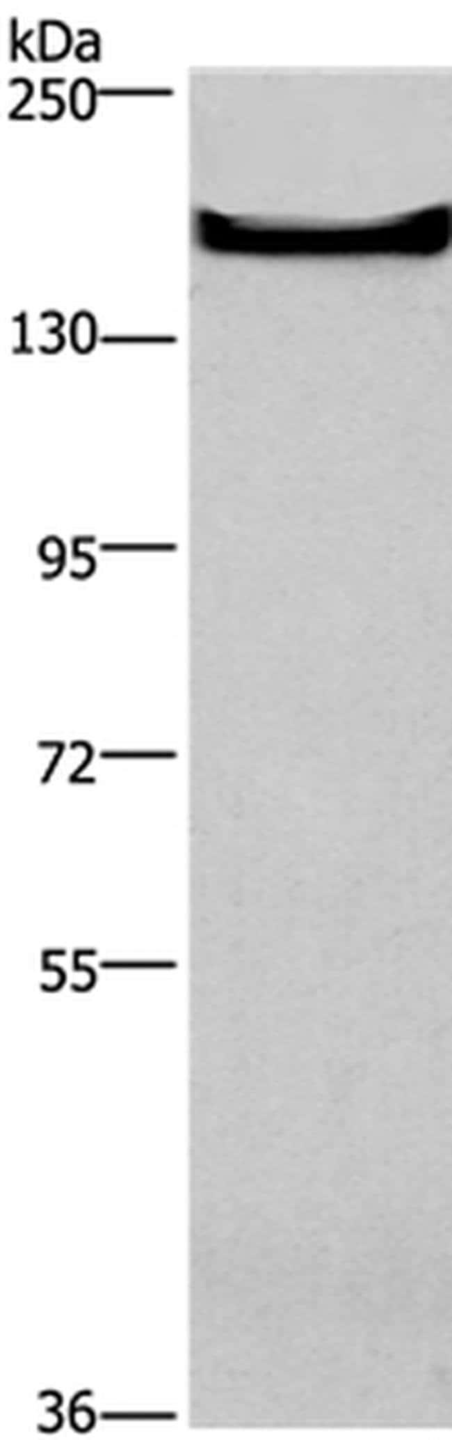 TEM5 Rabbit anti-Human, Mouse, Polyclonal, Invitrogen 100 µL; Unconjugated
