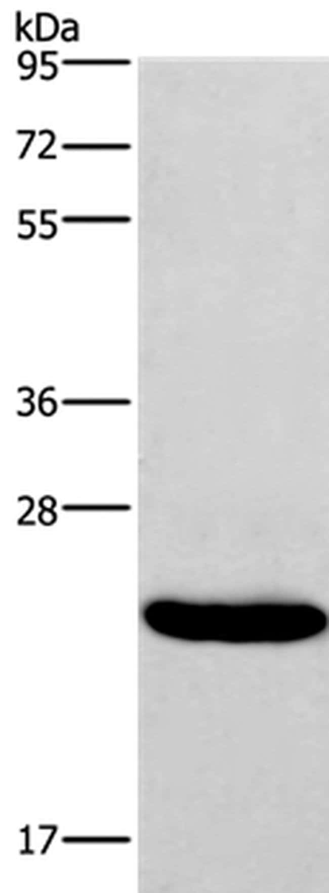 IFNA16 Rabbit anti-Human, Polyclonal, Invitrogen 100 µL; Unconjugated