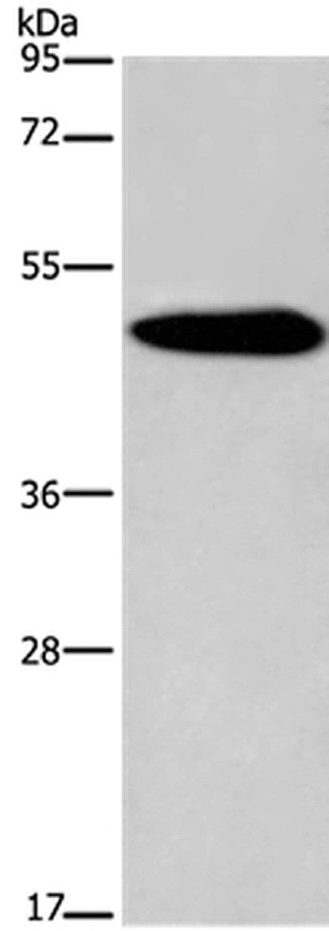 KCNG2 Rabbit anti-Human, Mouse, Polyclonal, Invitrogen 100 µL; Unconjugated