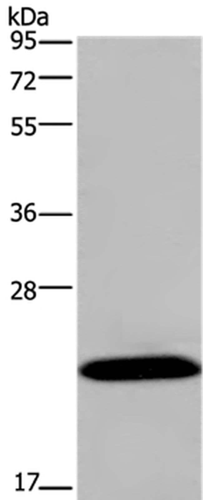KCNMB4 Rabbit anti-Human, Mouse, Polyclonal, Invitrogen 100 µL; Unconjugated
