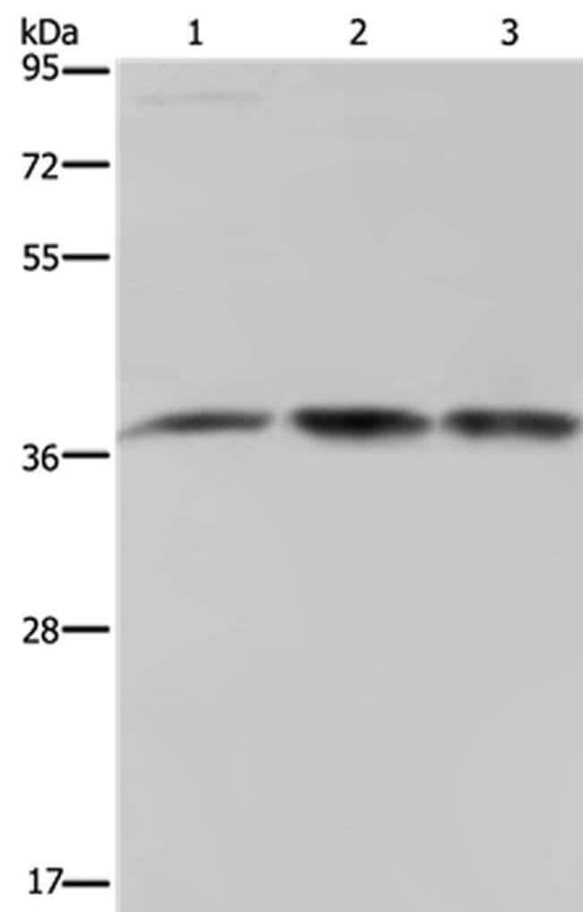 CAB39 Rabbit anti-Human, Polyclonal, Invitrogen 100 µL; Unconjugated