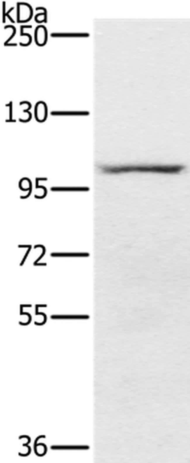 PDE5 Rabbit anti-Human, Polyclonal, Invitrogen 100 µL; Unconjugated