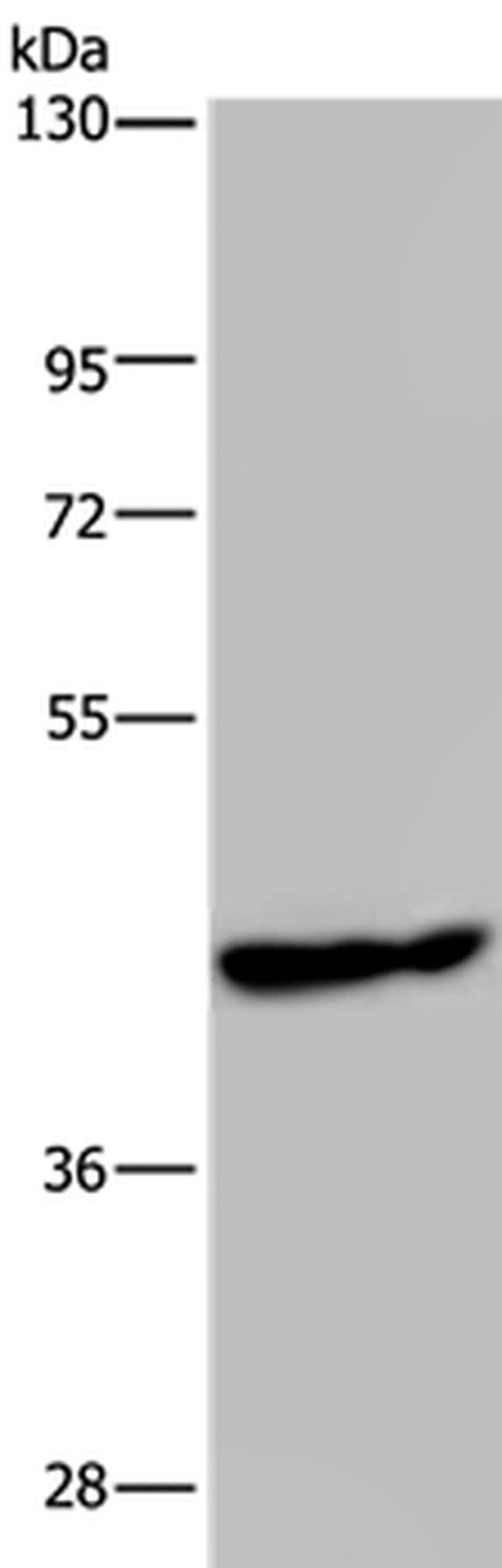 PHKG1 Rabbit anti-Human, Mouse, Polyclonal, Invitrogen 100 µL; Unconjugated