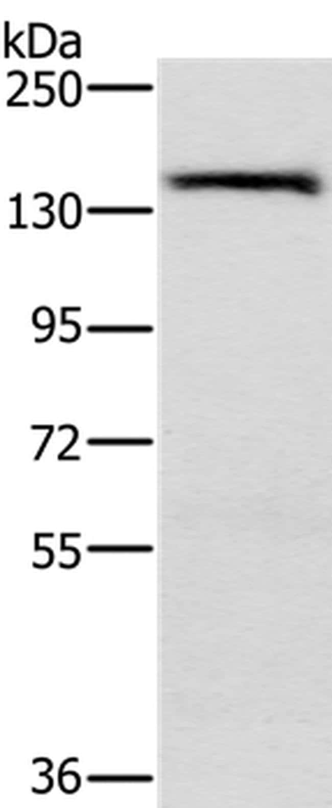 PPP2R3A Rabbit anti-Human, Polyclonal, Invitrogen 100 µL; Unconjugated