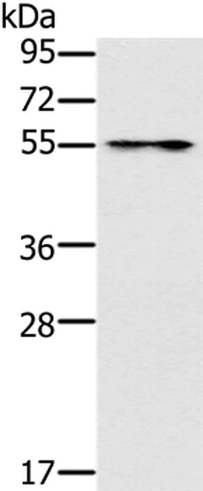 PUS10 Rabbit anti-Human, Mouse, Polyclonal, Invitrogen 100 µL; Unconjugated