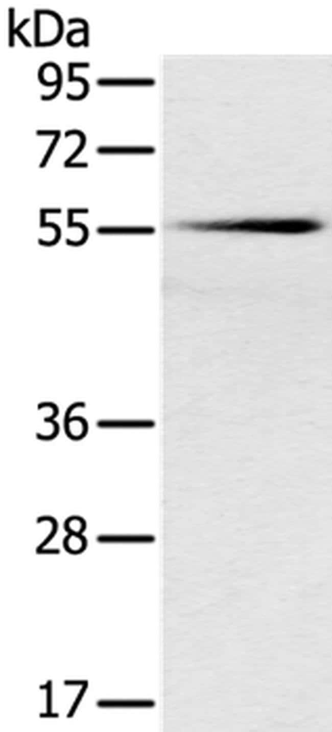 SLC16A10 Rabbit anti-Human, Mouse, Polyclonal, Invitrogen 100 µL;