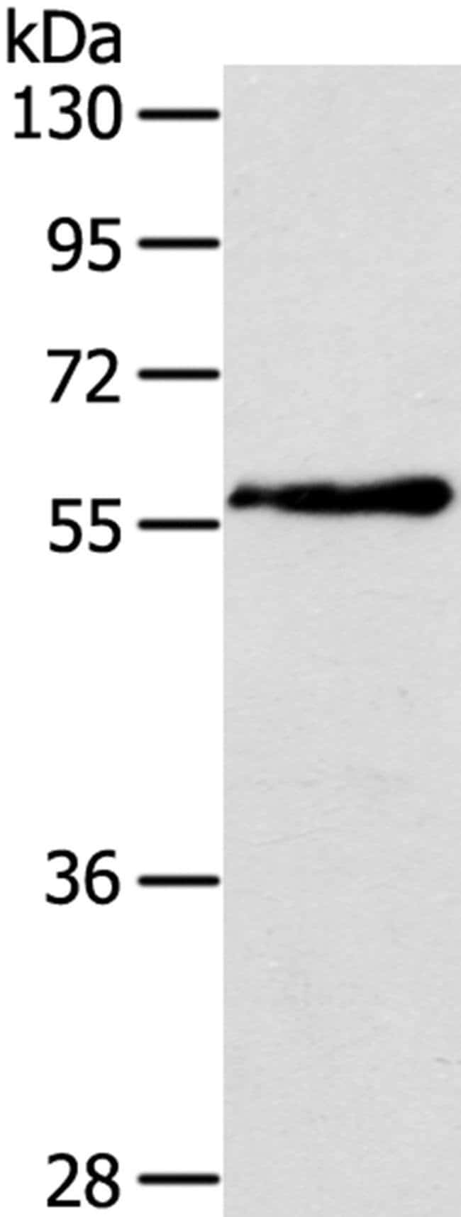 OLFM4 Rabbit anti-Human, Polyclonal, Invitrogen 100 µL; Unconjugated
