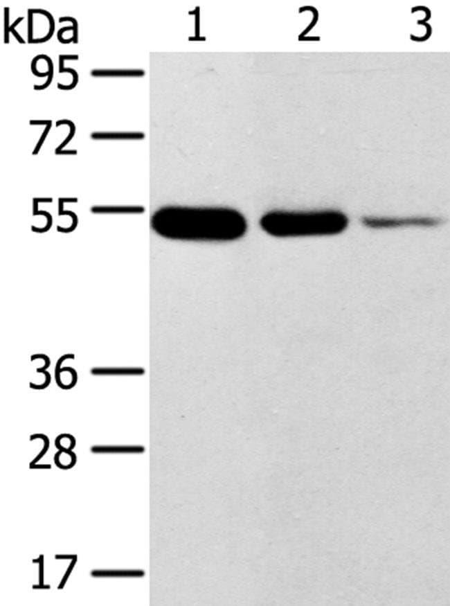TMPRSS11F Rabbit anti-Human, Mouse, Polyclonal, Invitrogen 100 µL;