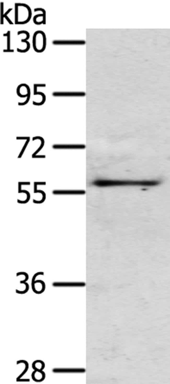 OLFM3 Rabbit anti-Human, Mouse, Polyclonal, Invitrogen 100 µL; Unconjugated