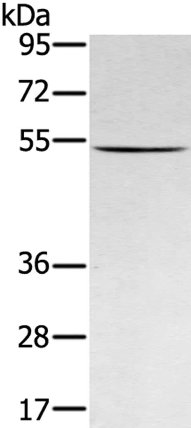 RNF14 Rabbit anti-Human, Mouse, Polyclonal, Invitrogen 100 µL; Unconjugated